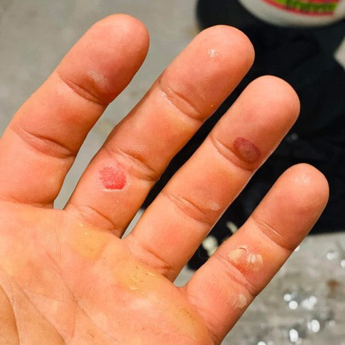 Blisters from the 24 hour event